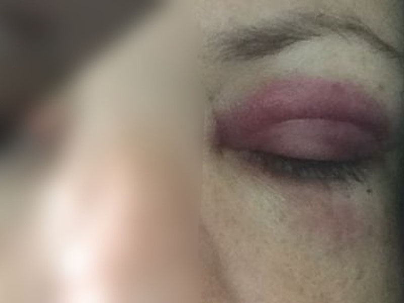 Enfermeira de Marília faz desabafo na web e posta foto após ser agredida pelo marido